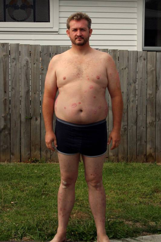 4 Photos of a 6 foot 3 268 lbs Male Weight Snapshot