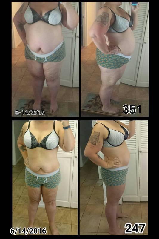 Before and After 104 lbs Fat Loss 5 foot 9 Female 351 lbs to 247 lbs
