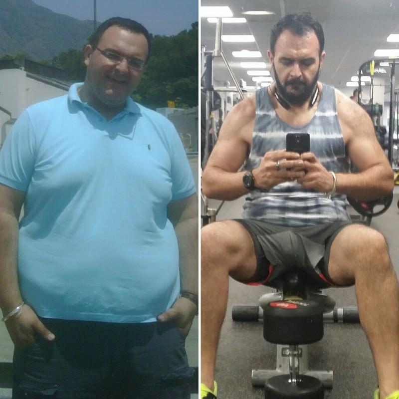6'3 Male Progress Pics of 124 lbs Weight Loss 363 lbs to 239 lbs