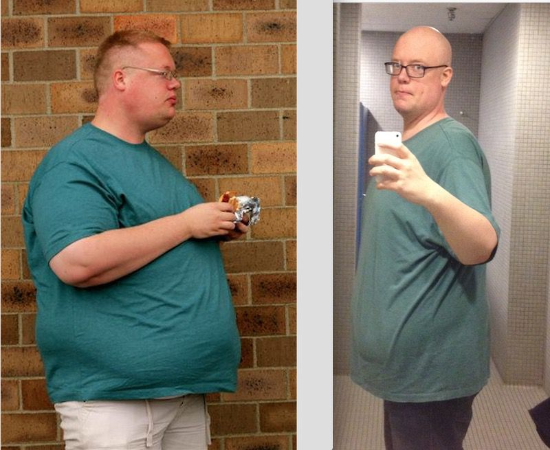 6 feet 3 Male 115 lbs Weight Loss Before and After 400 lbs to 285 lbs