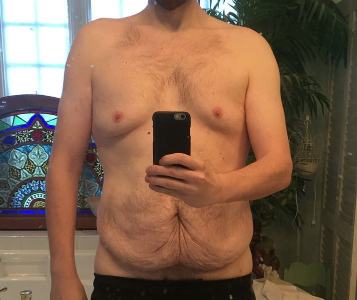 6 foot 1 Male 192 lbs Weight Loss Before and After 374 lbs to 182 lbs