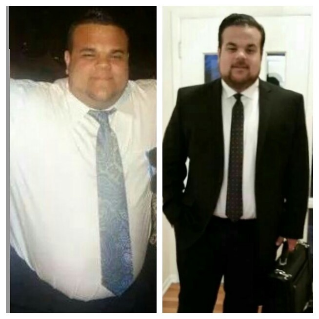 5'9 Male 70 lbs Weight Loss 375 lbs to 305 lbs