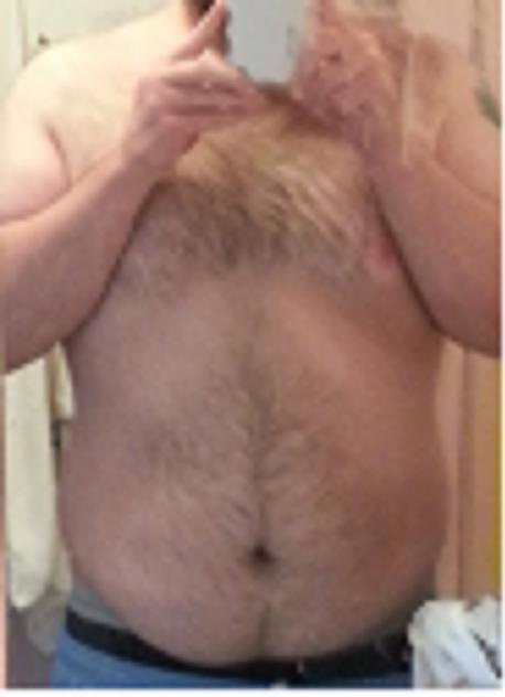 5'10 Male Progress Pics of 63 lbs Weight Loss 326 lbs to 263 lbs