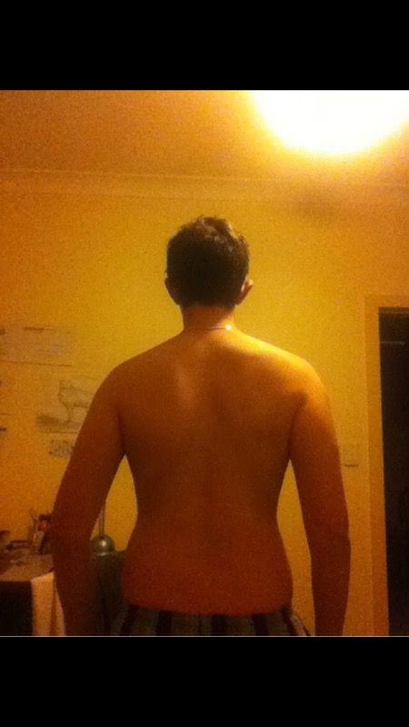 6 foot Male 45 lbs Weight Loss 201 lbs to 156 lbs