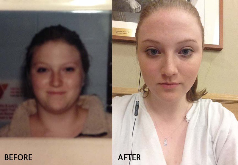5 feet 8 Female Before and After 30 lbs Weight Loss 200 lbs to 170 lbs