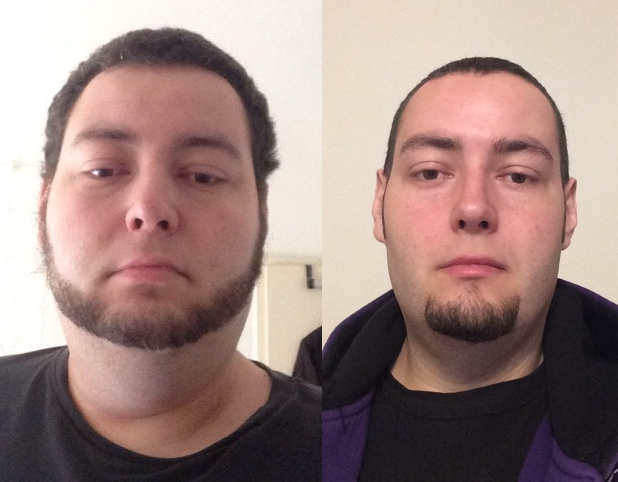 6 feet 2 Male 126 lbs Weight Loss Before and After 456 lbs to 330 lbs
