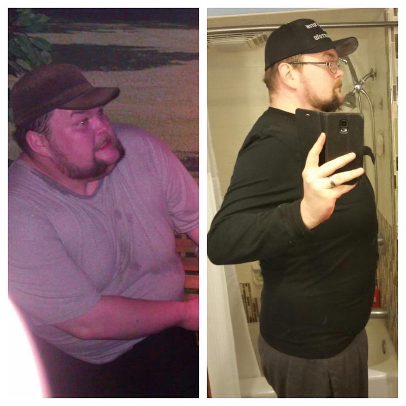 6'5 Male 100 lbs Fat Loss Before and After 420 lbs to 320 lbs
