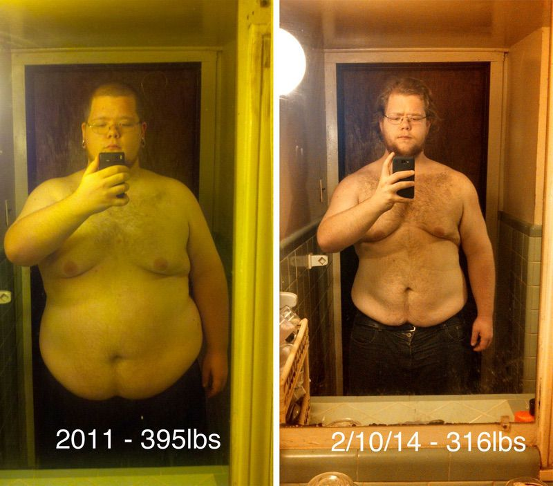 Before and After 79 lbs Weight Loss 6 feet 1 Male 395 lbs to 316 lbs