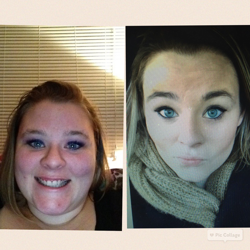 5'5 Female Before and After 120 lbs Weight Loss 320 lbs to 200 lbs