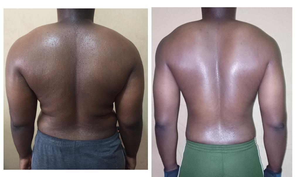 50 lbs Fat Loss Before and After 5 feet 6 Male 205 lbs to 155 lbs