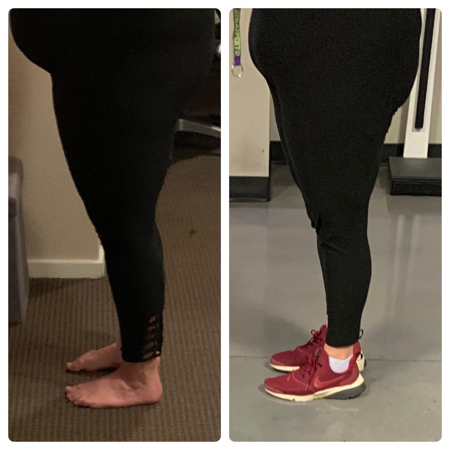 44 lbs Weight Loss 5 feet 7 Female 280 lbs to 236 lbs