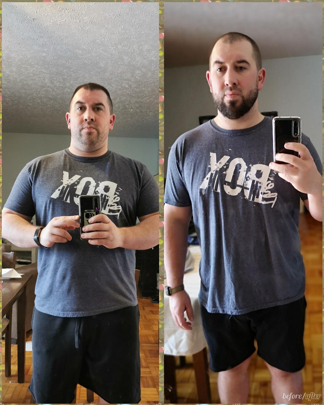 5'10 Male Progress Pics of 45 lbs Fat Loss 285 lbs to 240 lbs