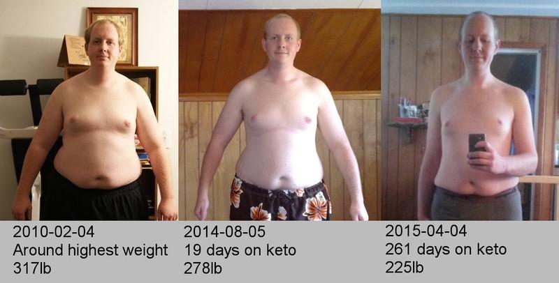 6 feet 4 Male 94 lbs Weight Loss 319 lbs to 225 lbs
