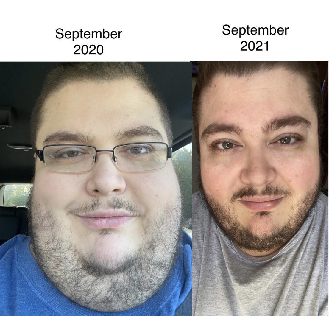 Progress Pics of 76 lbs Weight Loss 5 foot 10 Male 530 lbs to 454 lbs