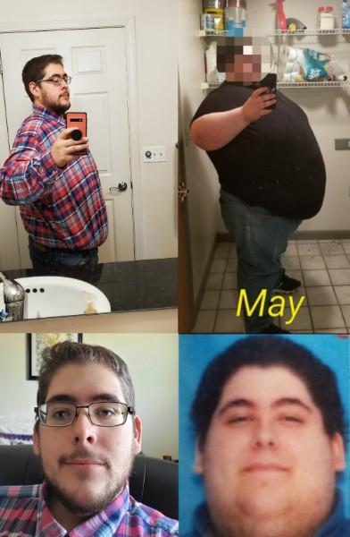 Progress Pics of 312 lbs Weight Loss 5'11 Male 620 lbs to 308 lbs