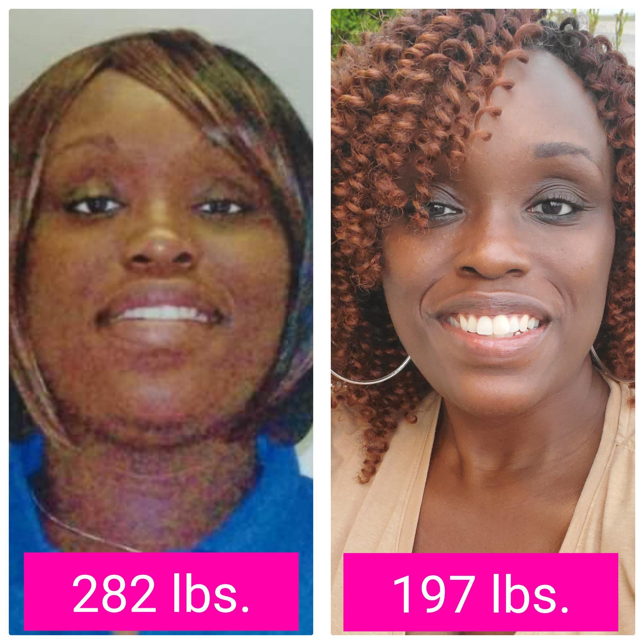 Progress Pics of 85 lbs Weight Gain 5 foot 9 Female 197 lbs to 282 lbs