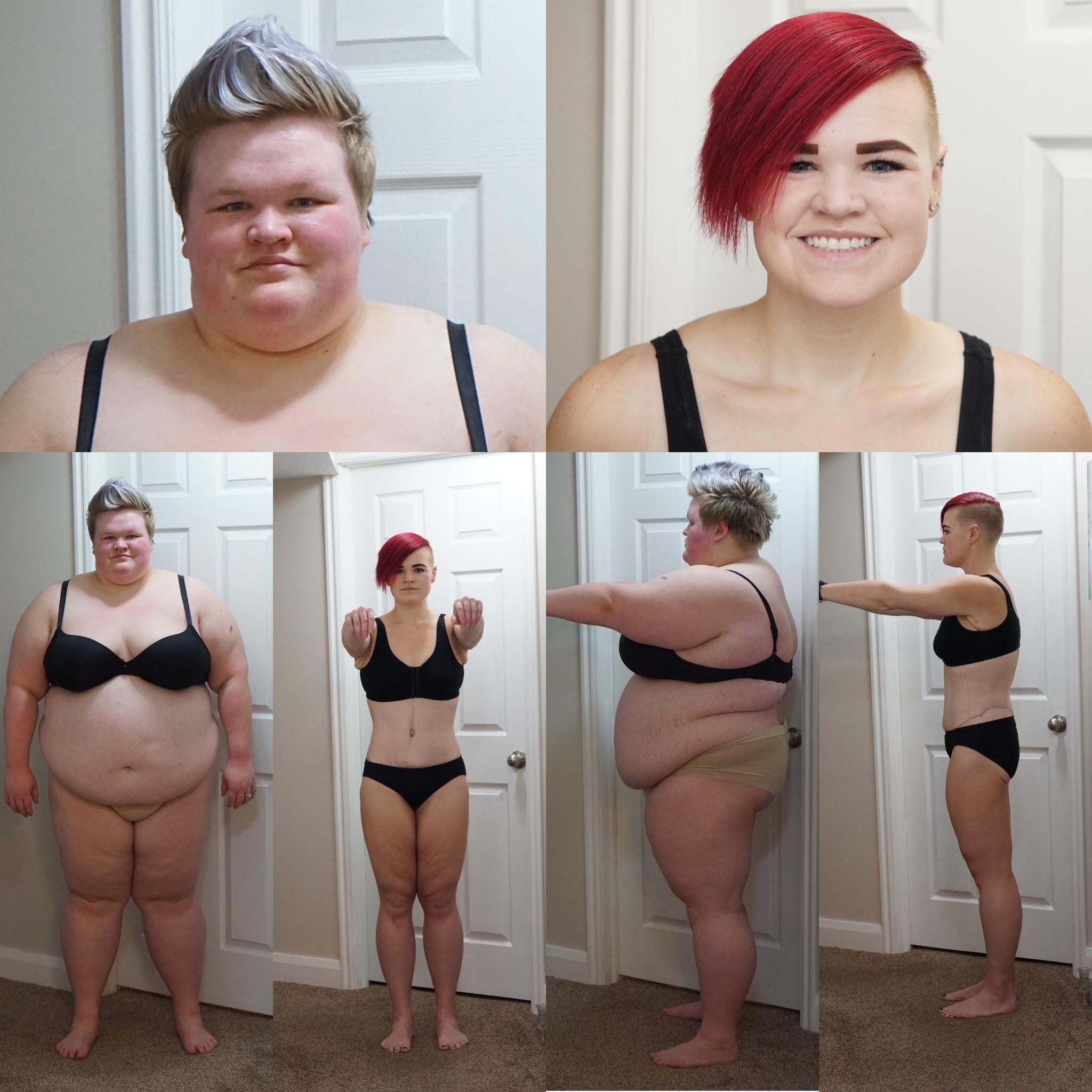 266 lbs Fat Loss Before and After 5 feet 7 Female 436 lbs to 170 lbs