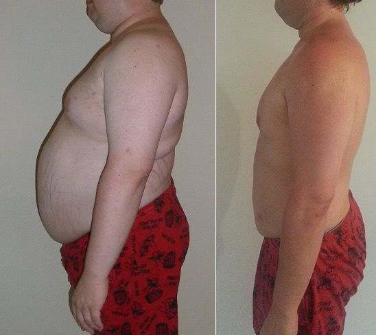 102 lbs Fat Loss 6 foot 3 Male 320 lbs to 218 lbs