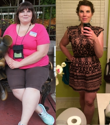 5 feet 9 Female 141 lbs Fat Loss Before and After 317 lbs to 176 lbs