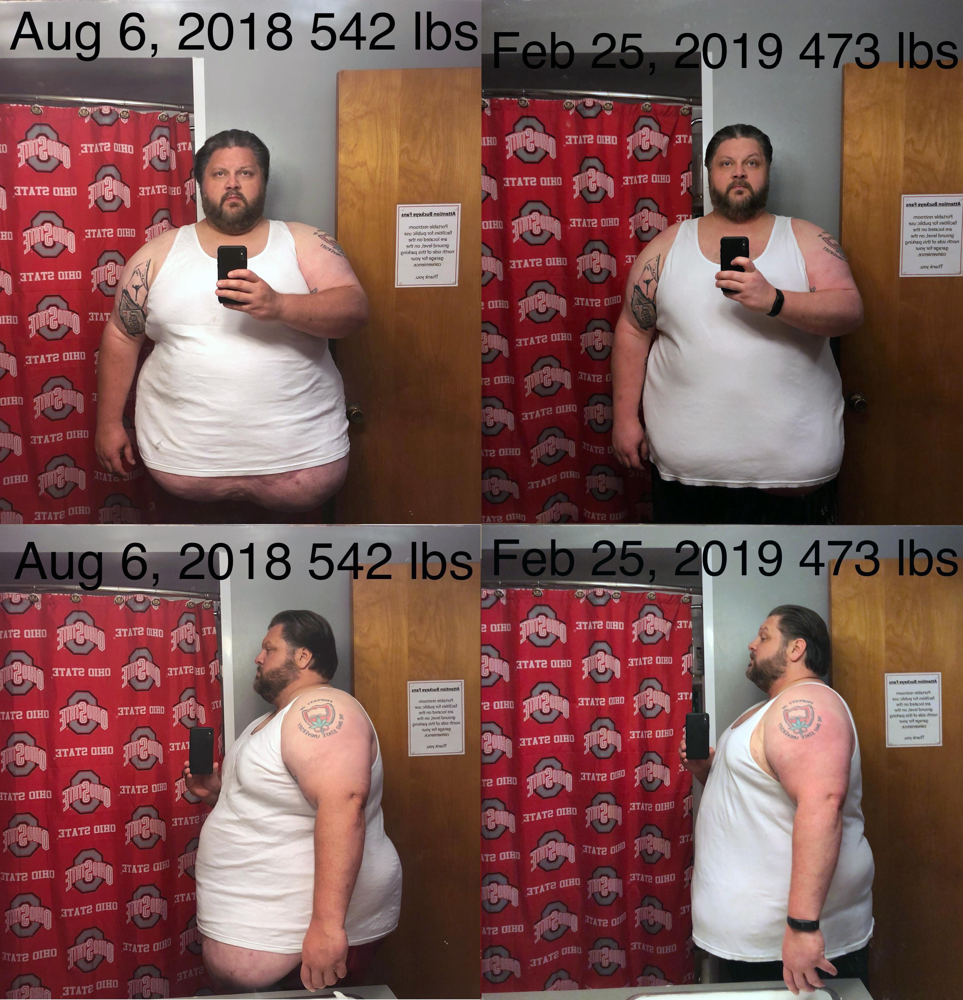 69 lbs Fat Loss Before and After 6 foot 1 Male 542 lbs to 473 lbs