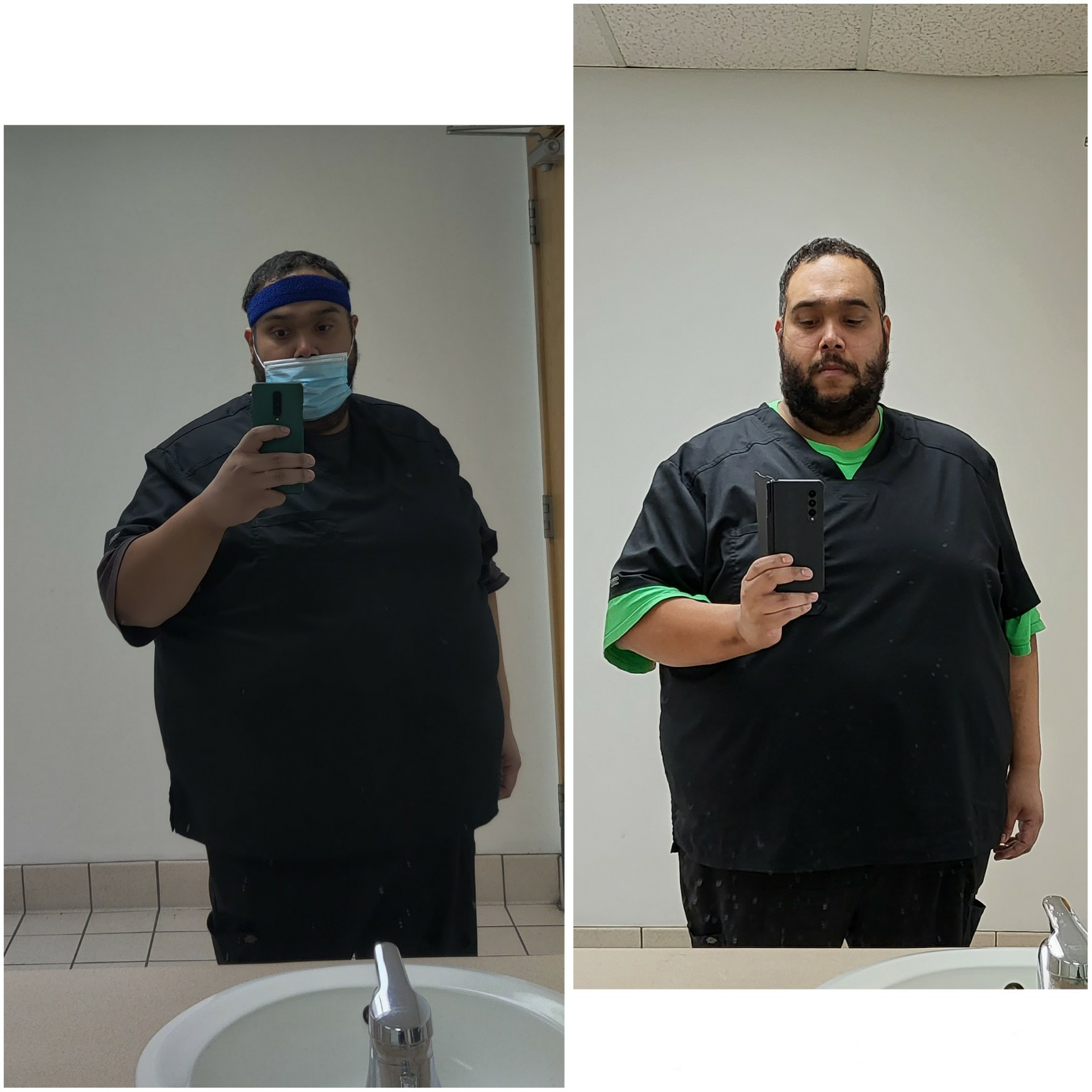 55 lbs Weight Loss Before and After 5 foot 10 Male 420 lbs to 365 lbs