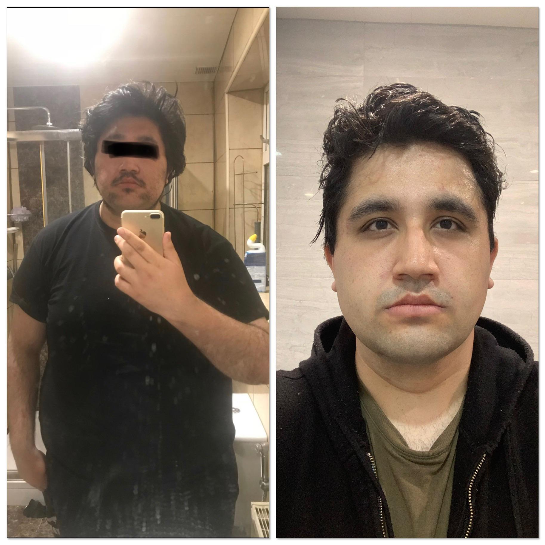 6'2 Male Progress Pics of 70 lbs Fat Loss 330 lbs to 260 lbs
