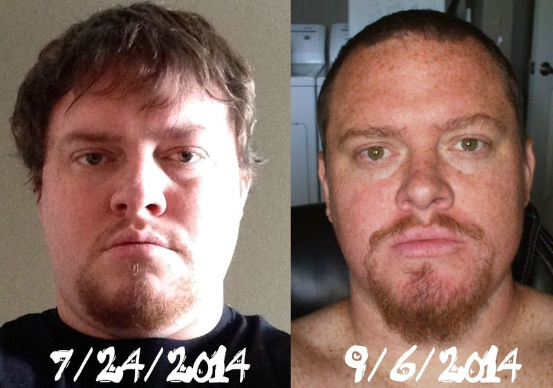 6 feet 2 Male 54 lbs Weight Loss Before and After 410 lbs to 356 lbs