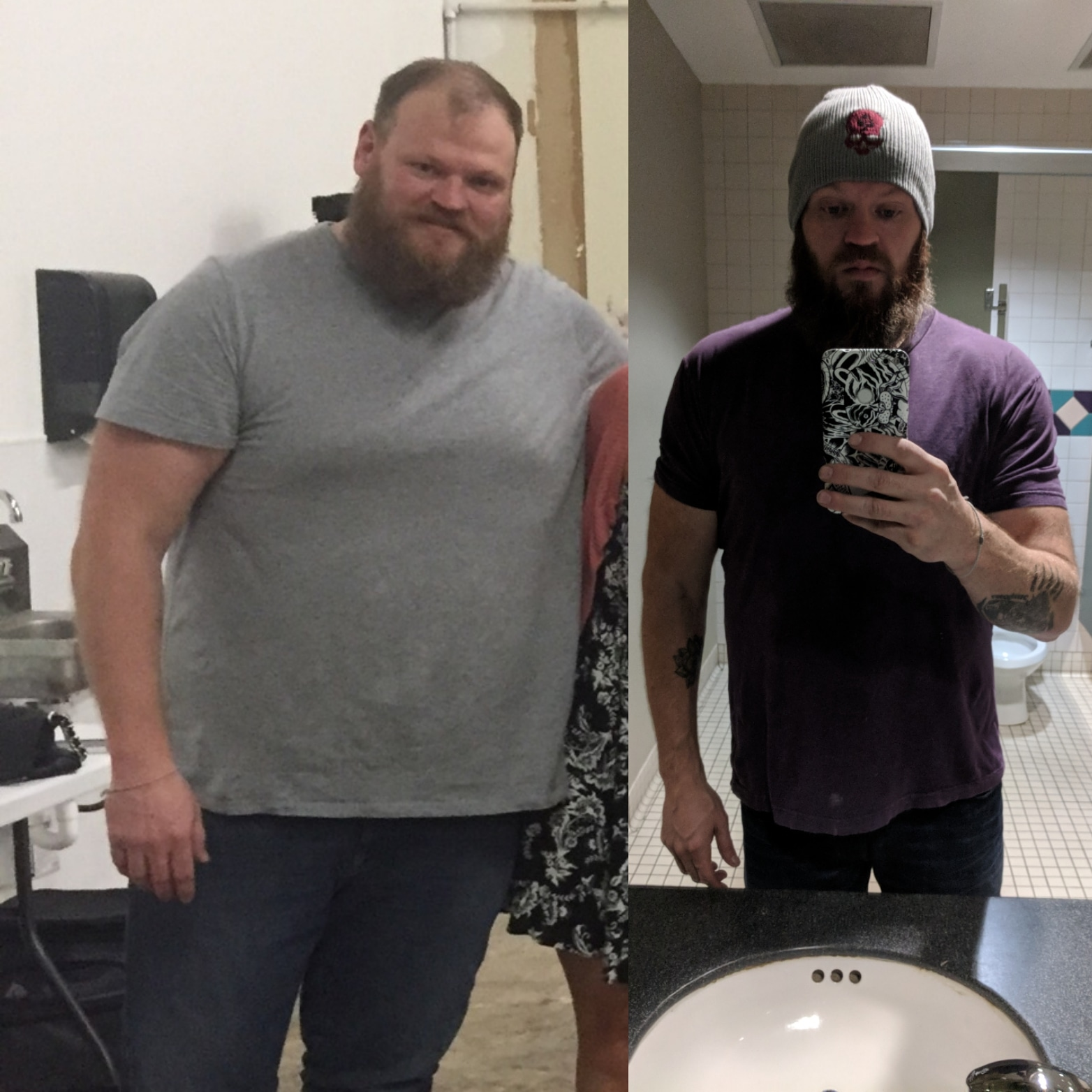 6 feet 4 Male 131 lbs Weight Loss Before and After 365 lbs to 234 lbs