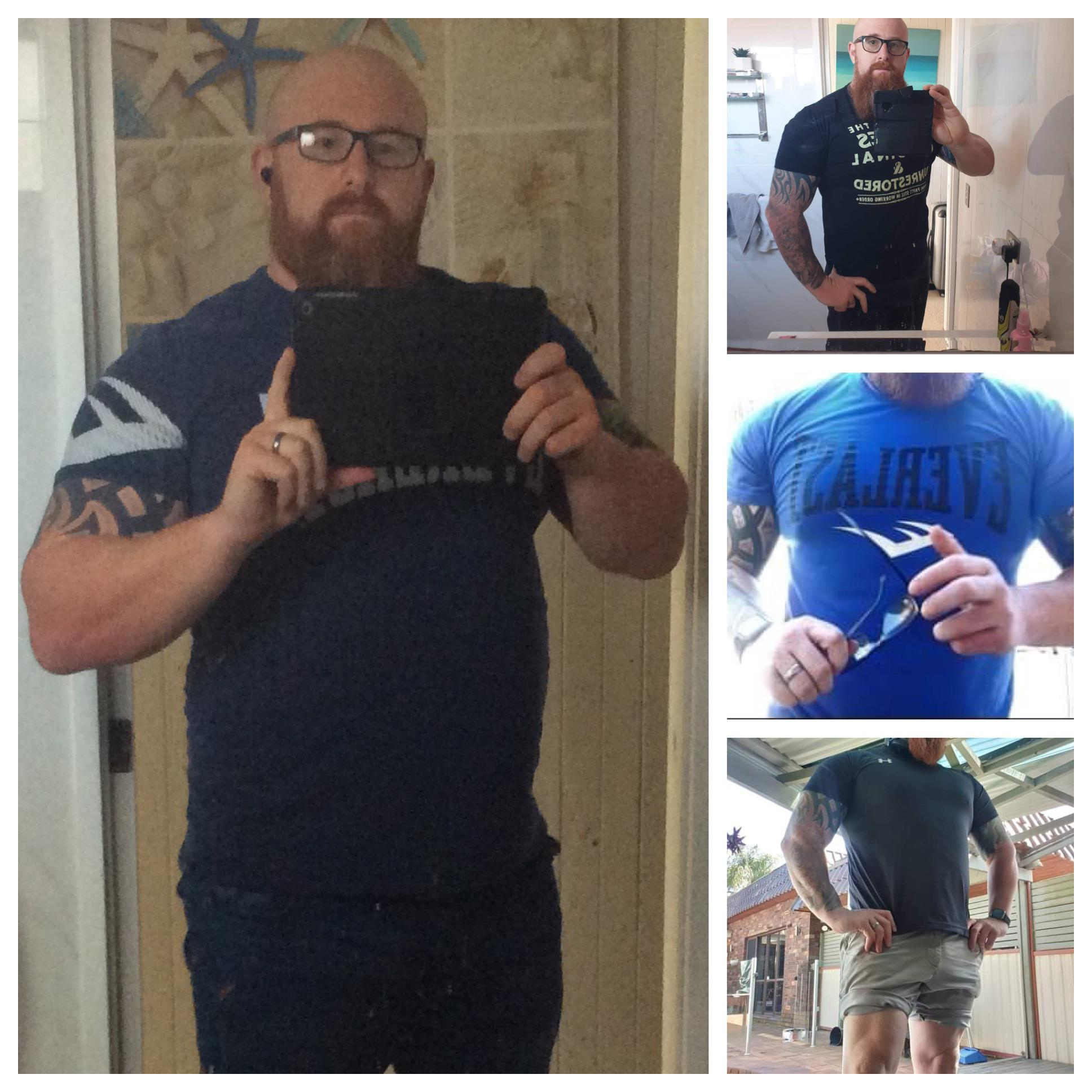 6 feet 1 Male Before and After 70 lbs Weight Loss 330 lbs to 260 lbs