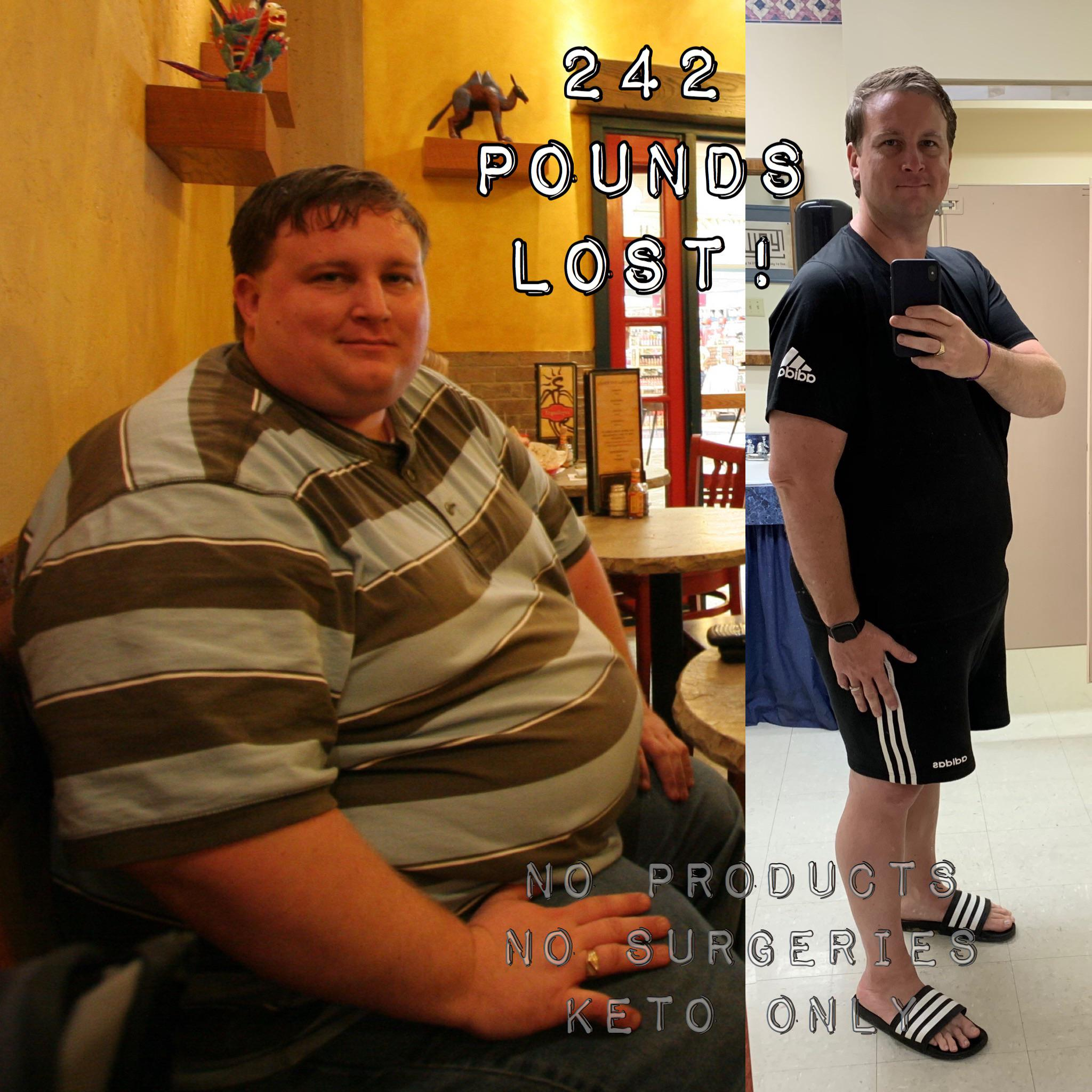 6 feet 4 Male Before and After 242 lbs Weight Loss 550 lbs to 308 lbs