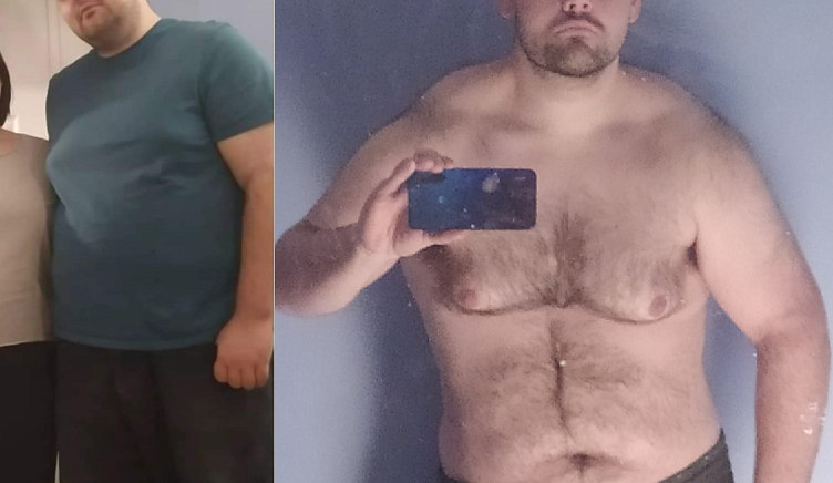 6 feet 2 Male 80 lbs Fat Loss Before and After 330 lbs to 250 lbs