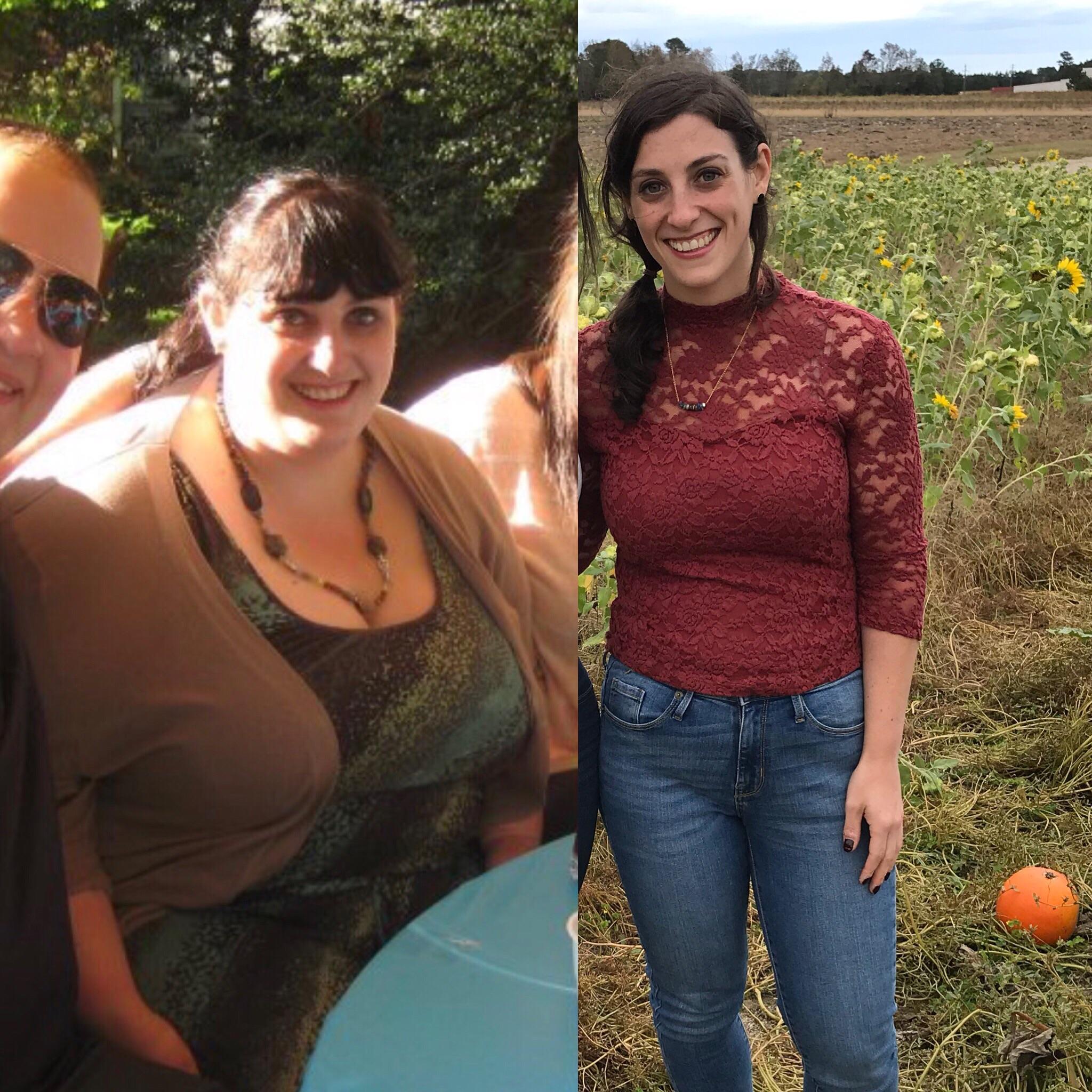 Progress Pics of 128 lbs Weight Loss 5'4 Female 278 lbs to 150 lbs