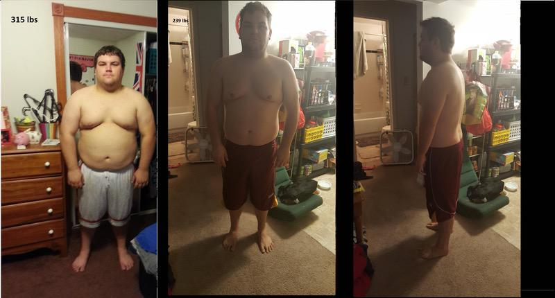 76 lbs Weight Loss Before and After 5 feet 8 Male 315 lbs to 239 lbs