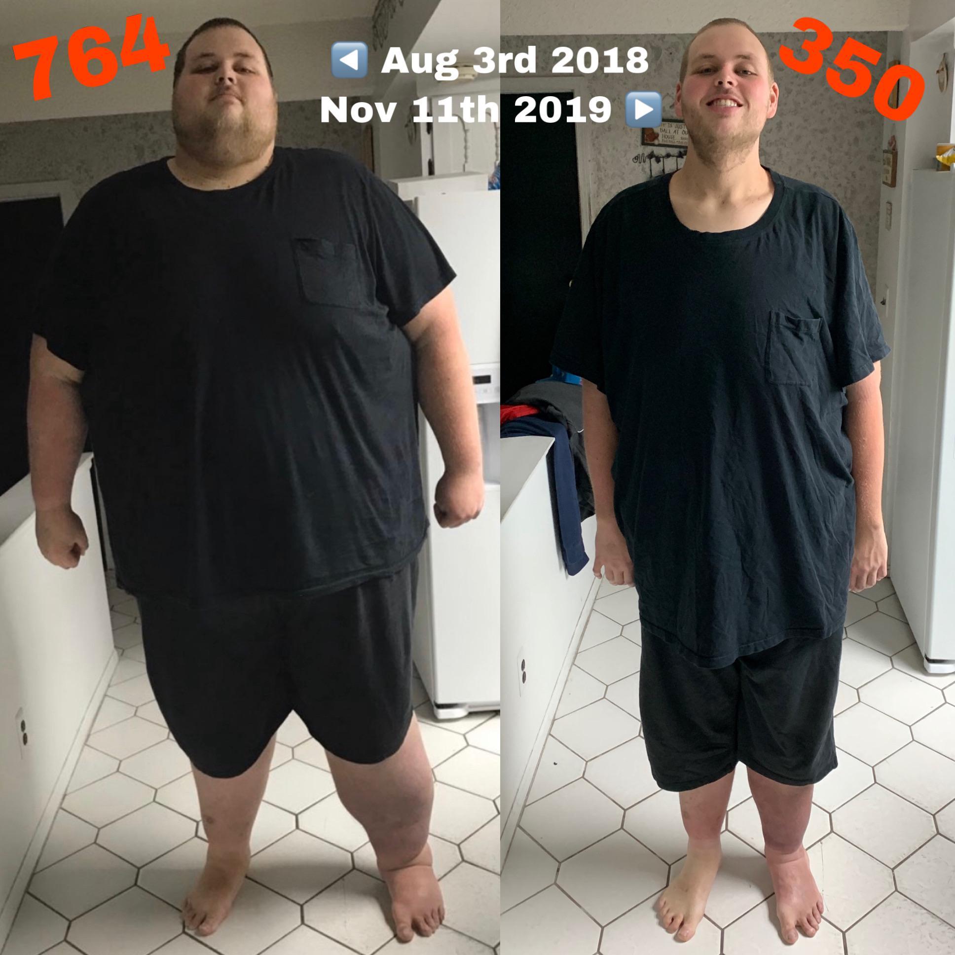 414 lbs Weight Loss 6 feet 8 Male 764 lbs to 350 lbs