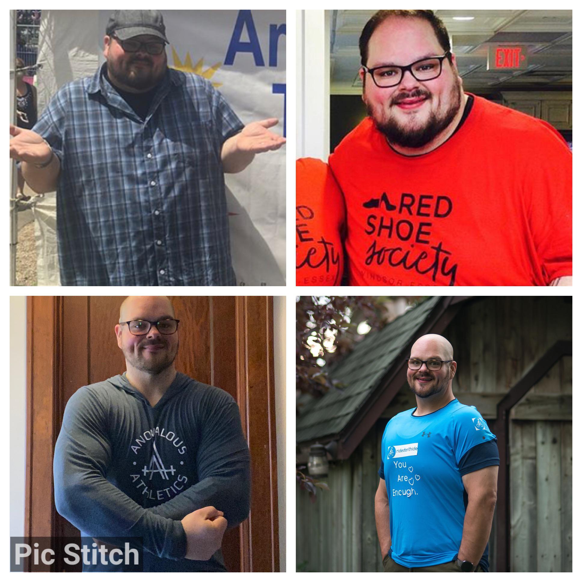 Progress Pics of 170 lbs Weight Loss 5'10 Male 400 lbs to 230 lbs