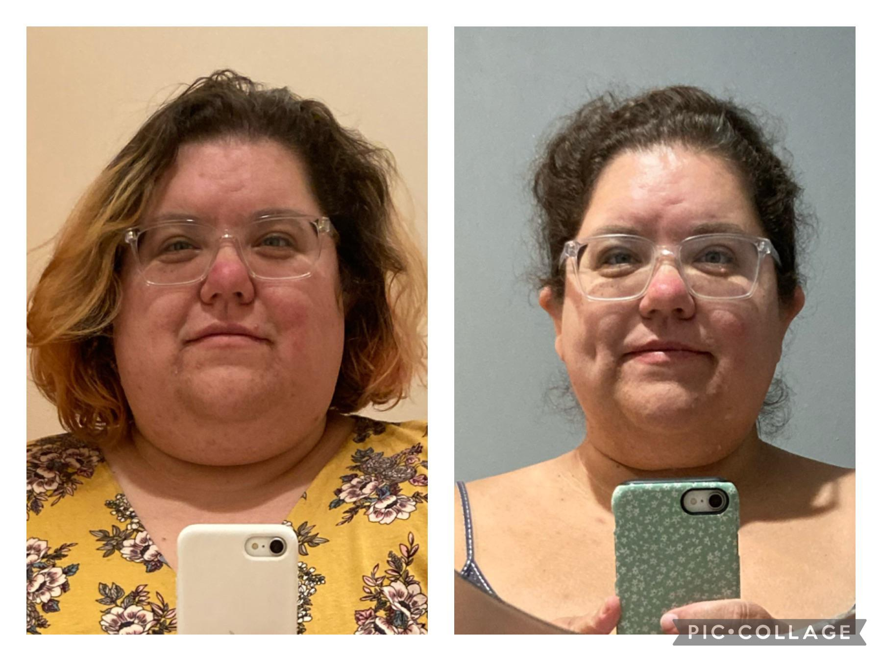 5 feet 3 Female 119 lbs Fat Loss Before and After 430 lbs to 311 lbs