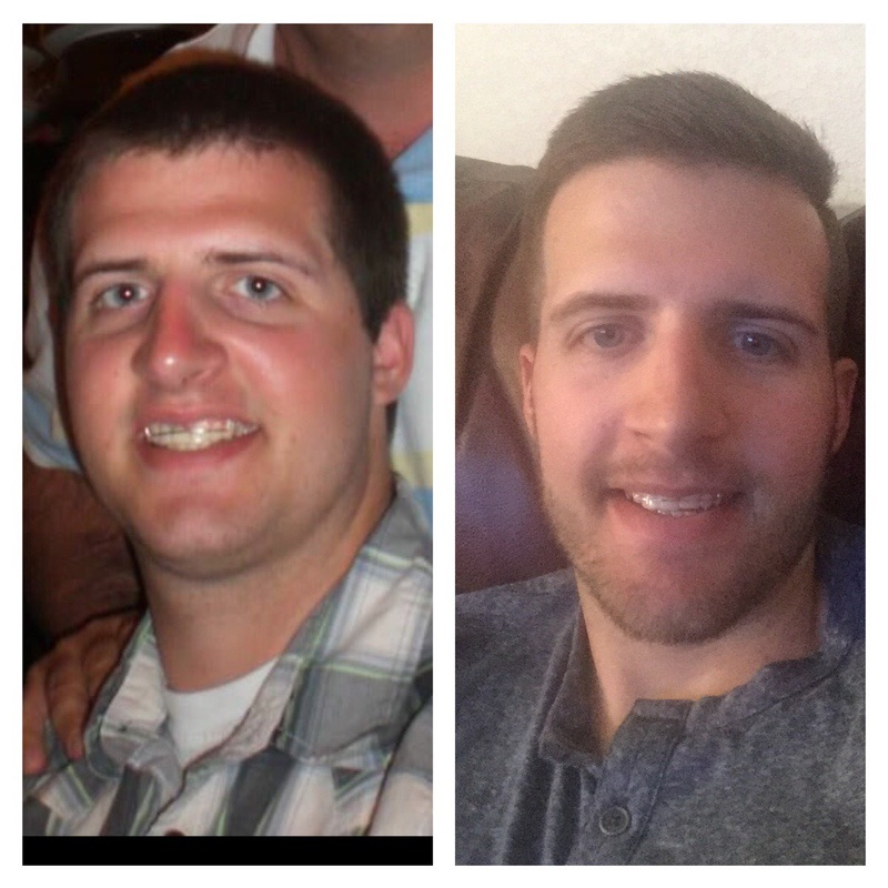 Before and After 63 lbs Weight Loss 6 feet 1 Male 253 lbs to 190 lbs
