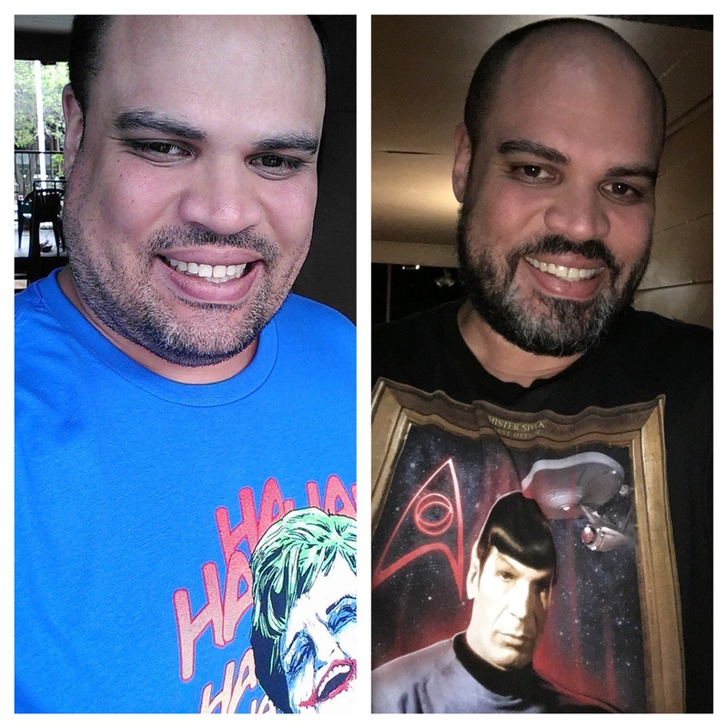 88 lbs Weight Loss Before and After 6 feet 4 Male 400 lbs to 312 lbs