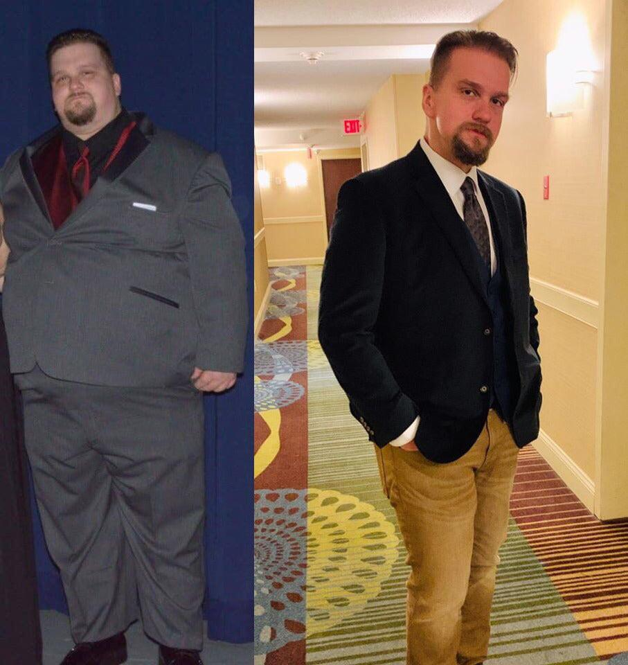 Before and After 250 lbs Weight Loss 6 feet 10 Male 470 lbs to 220 lbs