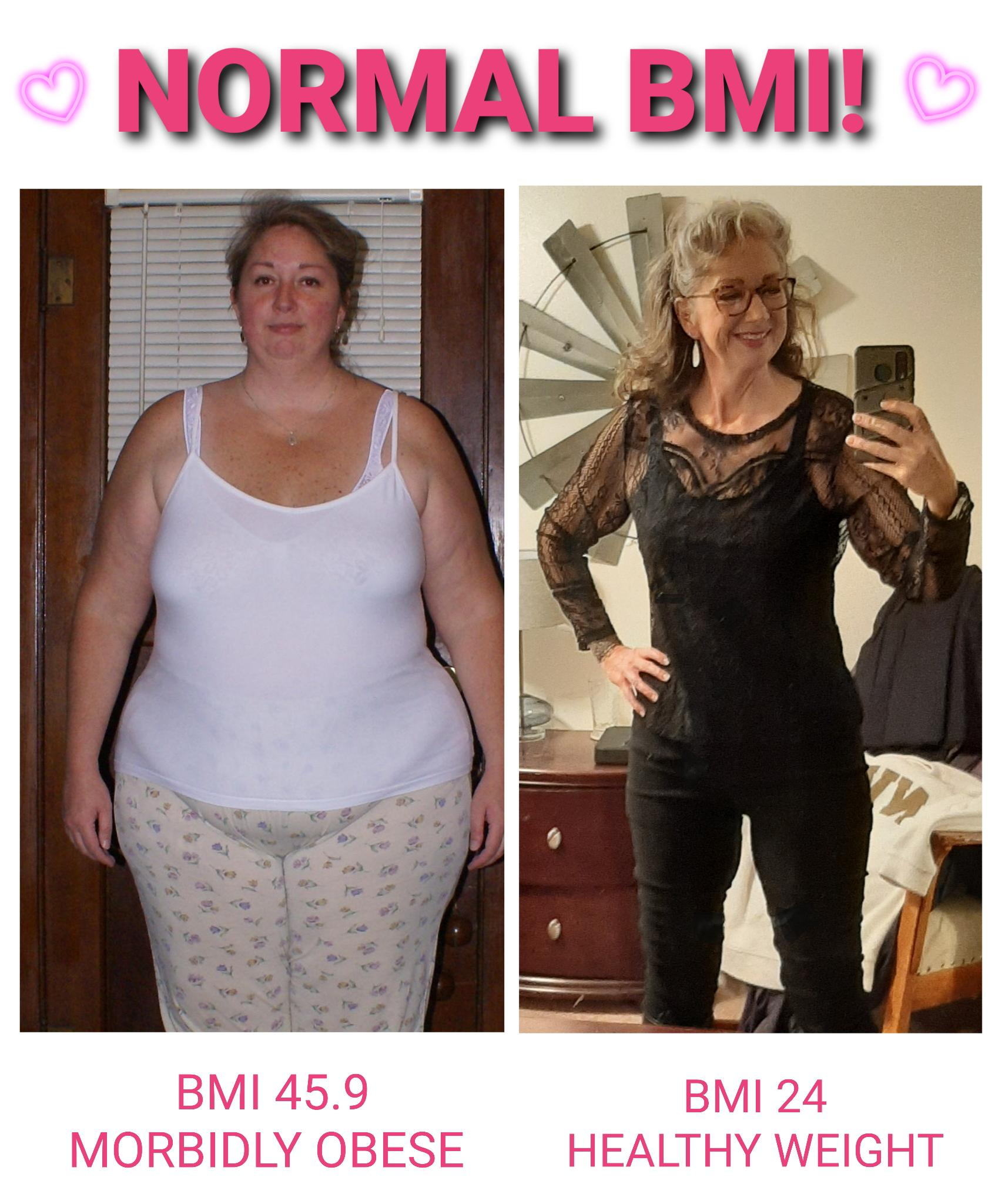 158 lbs Weight Loss Before and After 5 feet 11 Female 329 lbs to 171 lbs