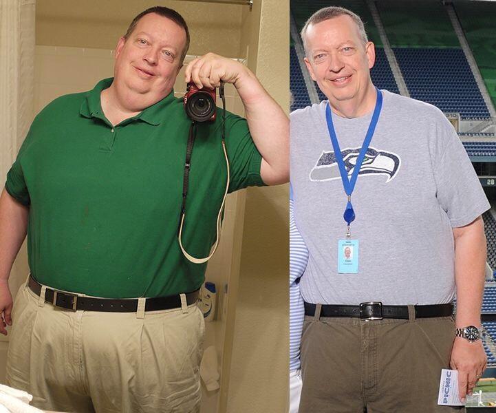 Progress Pics of 160 lbs Weight Loss 5'11 Male 420 lbs to 260 lbs
