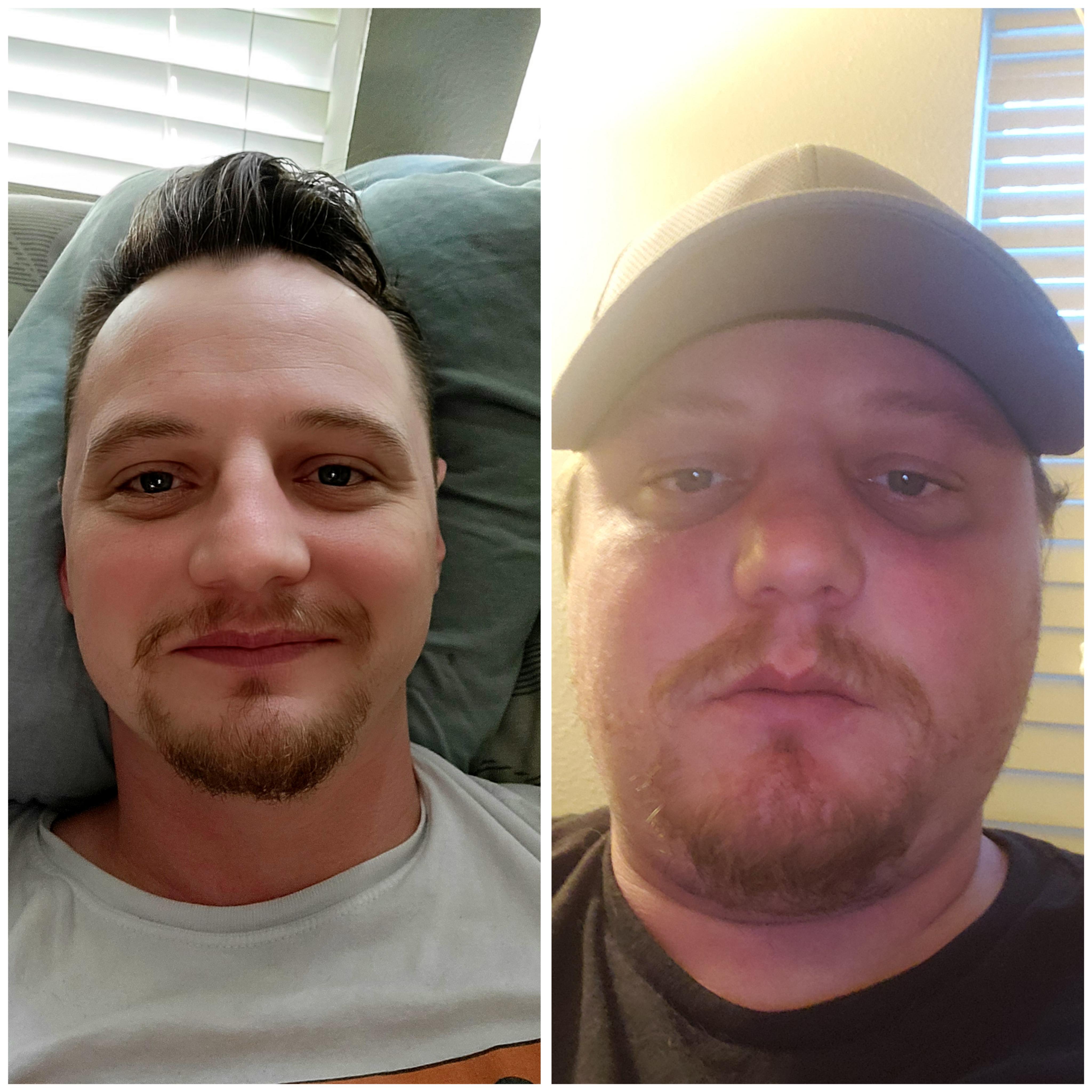 6 foot Male Progress Pics of 55 lbs Fat Loss 265 lbs to 210 lbs