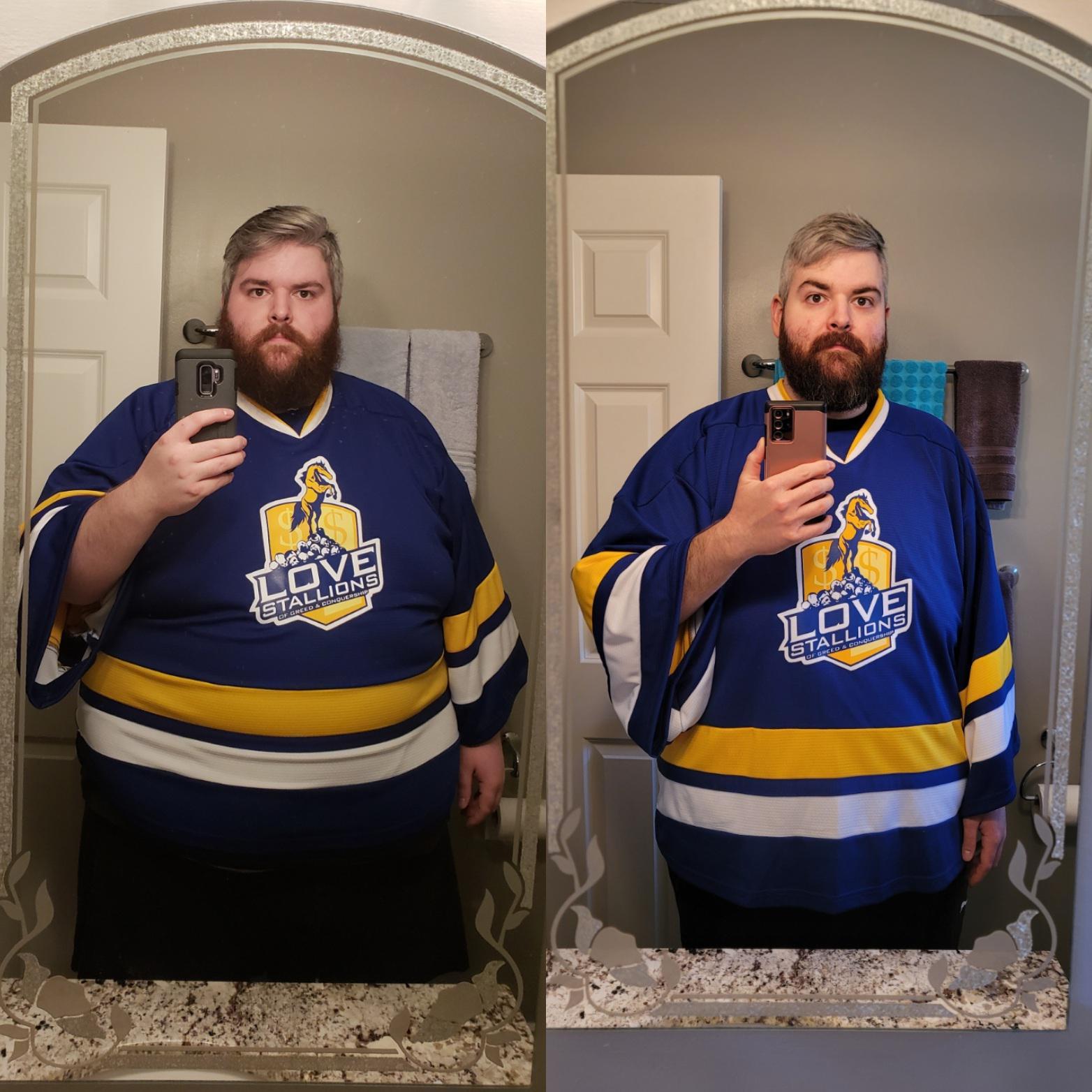 6 feet 2 Male Progress Pics of 154 lbs Fat Loss 469 lbs to 315 lbs
