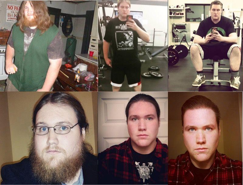 Progress Pics of 170 lbs Fat Loss 6'4 Male 420 lbs to 250 lbs