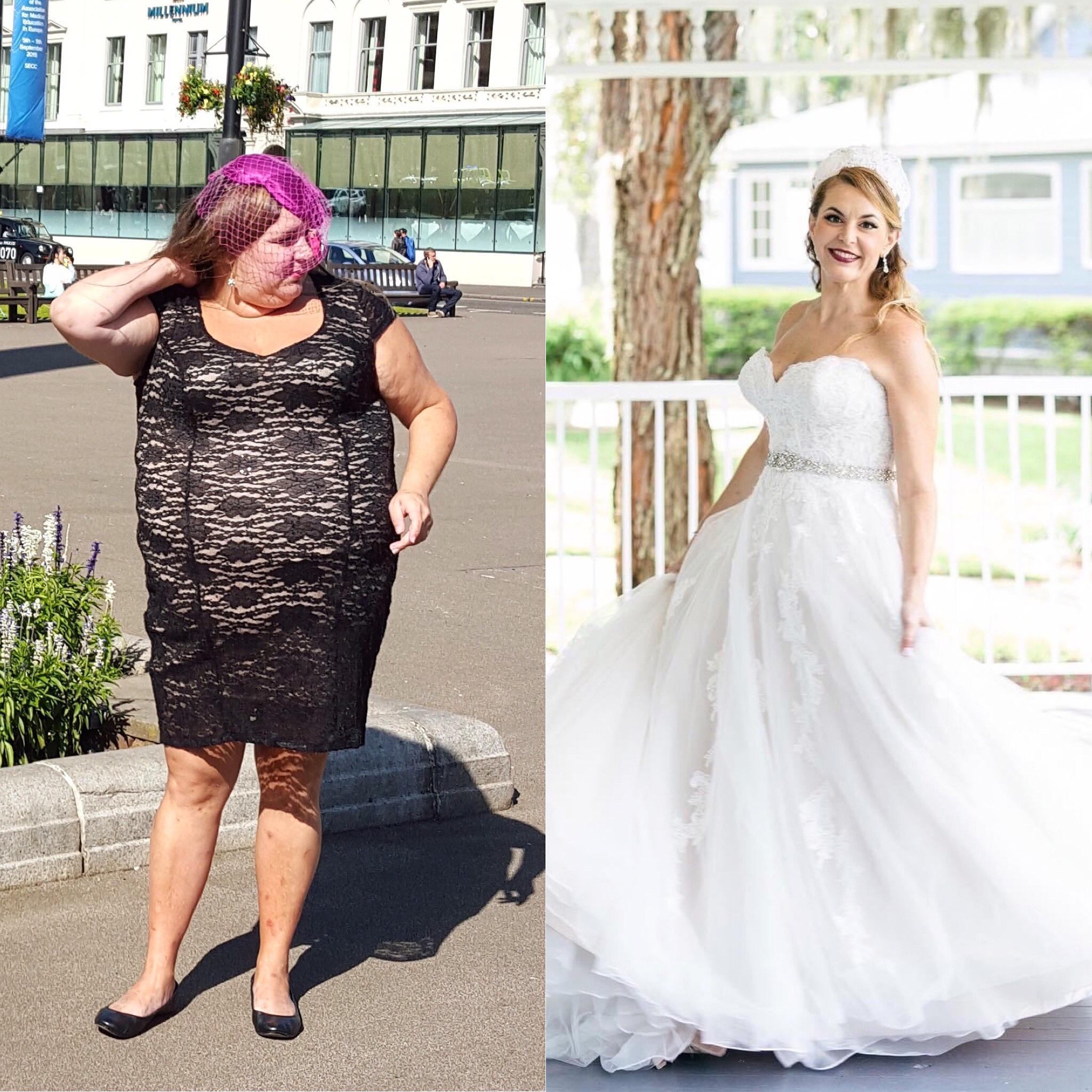 145 lbs Weight Loss 5 feet 7 Female 313 lbs to 168 lbs