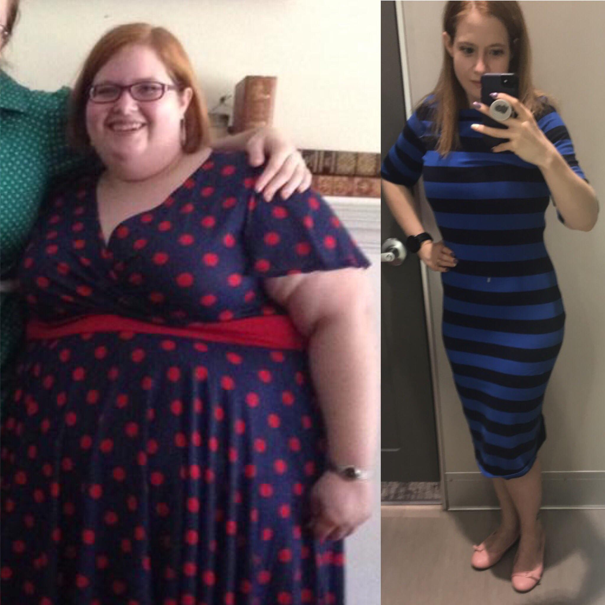 180 lbs Fat Loss Before and After 5'3 Female 322 lbs to 142 lbs