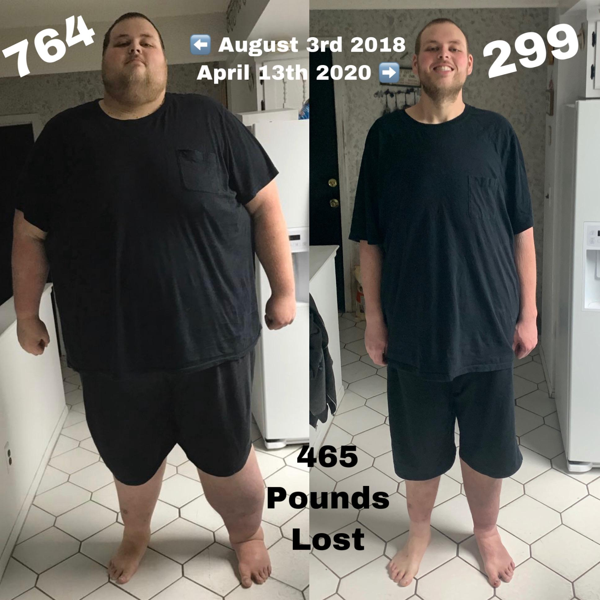 Before and After 465 lbs Weight Loss 6'8 Male 764 lbs to 299 lbs