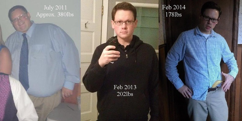 5 foot 9 Male Before and After 210 lbs Weight Loss 388 lbs to 178 lbs