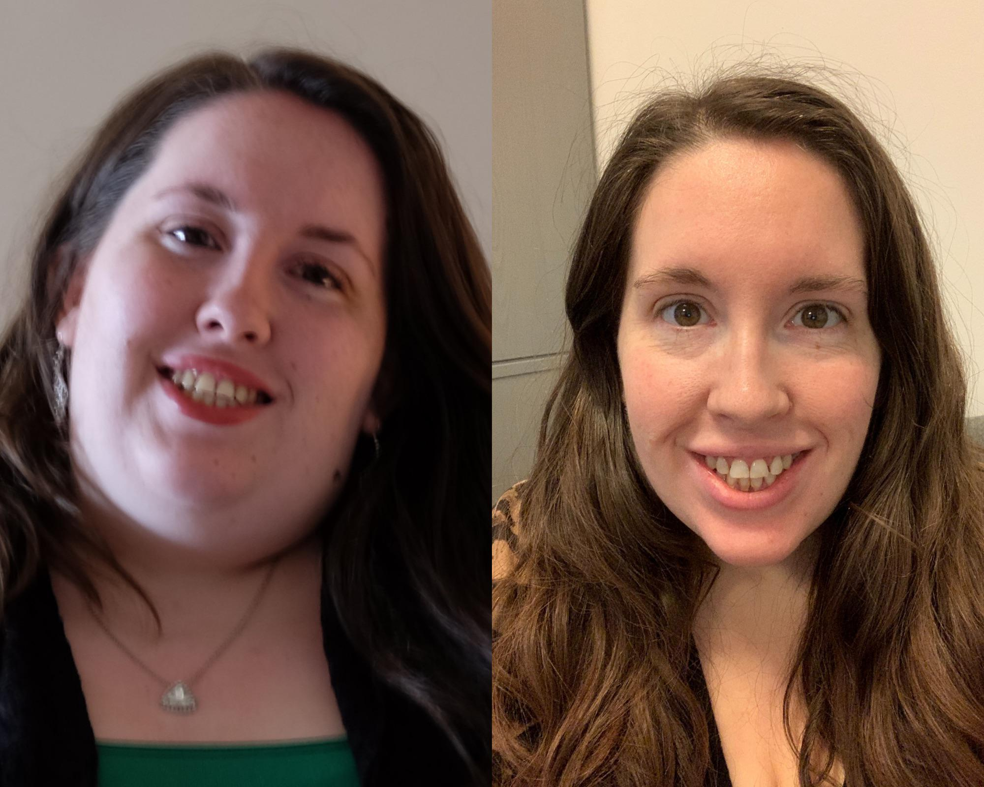 5 foot Female 90 lbs Weight Loss 243 lbs to 153 lbs