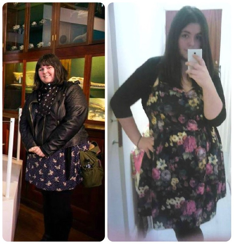5 feet 7 Female Before and After 64 lbs Weight Loss 283 lbs to 219 lbs